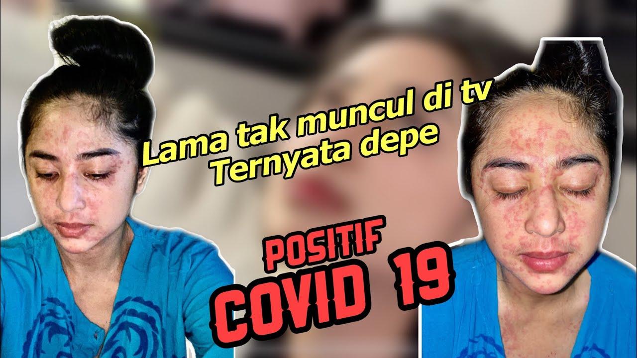 Innalillahi wa Innailaihi Rojiun Dewi Persik Positif Covid 19
